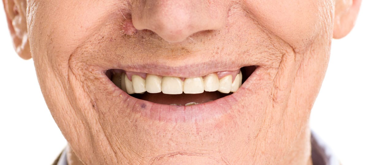 Dentures Guelph ON
