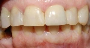 Guelph Village Dental Cosmetics after
