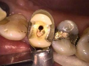Guelph Dental Crowns