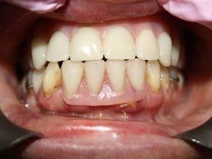 Guelph Dental Dentures