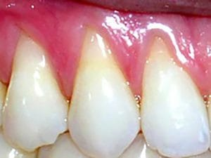 Guelph Village Dental gum surgery - Before