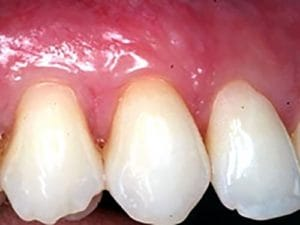 Guelph Village Dental gum surgery - After