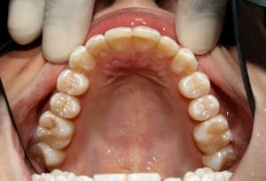 Guelph Dental example 1 - After 8 months of active Invisalign treatment