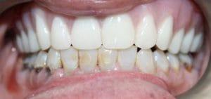 Guelph Dental Dentures After