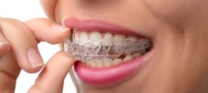 Invisalign Treatment in Guelph