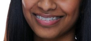 Orthodontic Treatment in Guelph