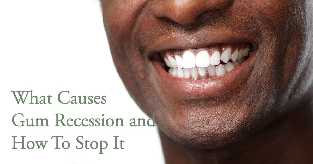 Gum Recession Causes Guelph Village Dental