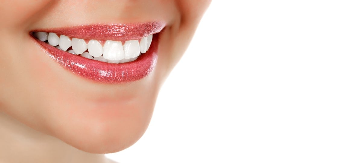 porcelain-veneers-guelph-village-dental