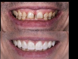 Advantages of Veneers,